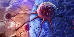 دراسة تخصّص طب الأورام في أمريكا